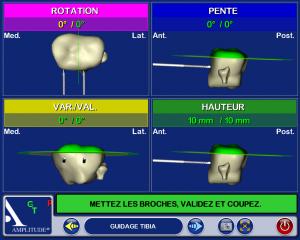 chirurgie assistée par ordinateur PTG